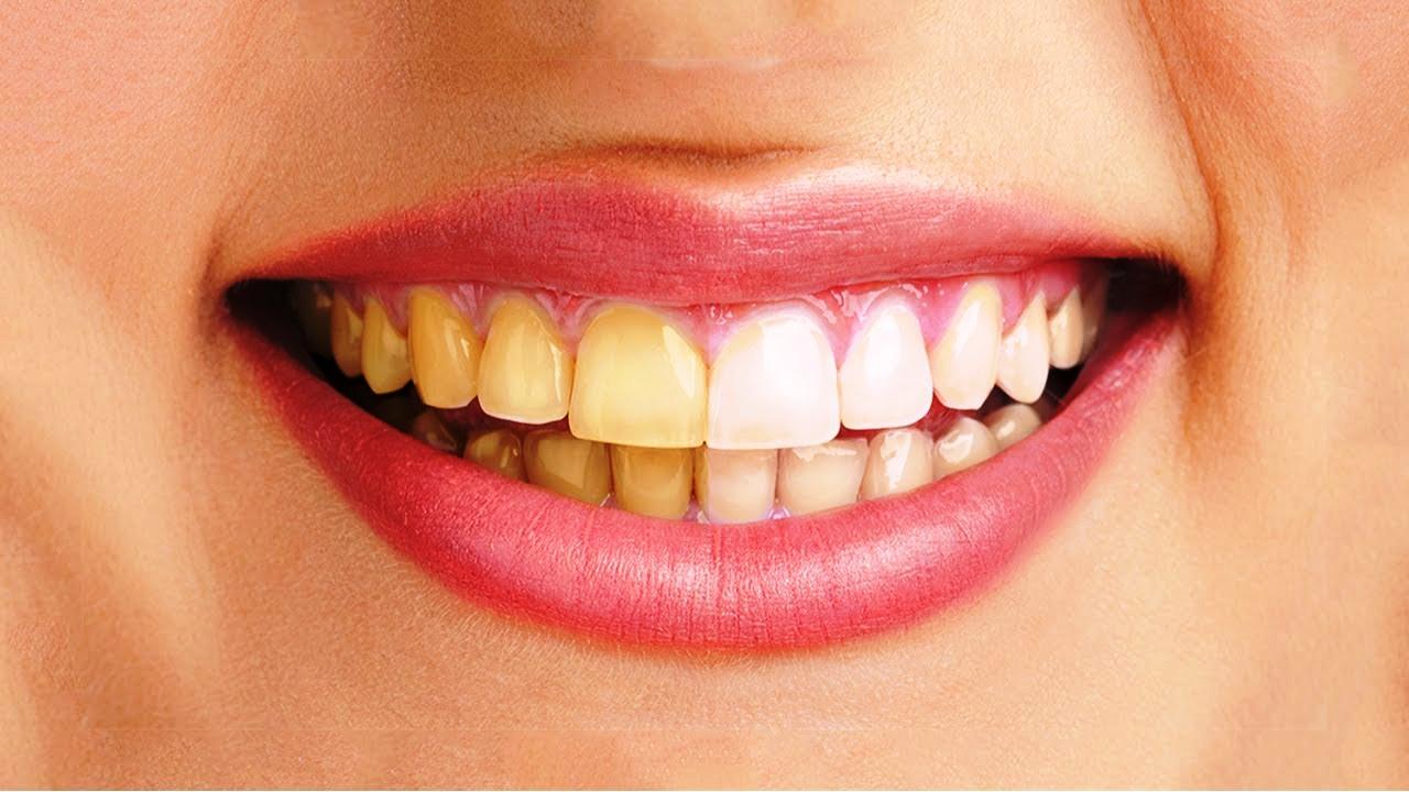 Răng sứ có đổi màu không, răng sứ bị đổi màu, răng sứ có bị đổi màu không, đổi màu răng sứ