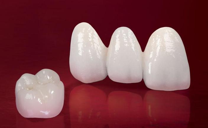 Răng sứ titan vita có tốt không, răng sứ titan vita giá bao nhiêu, răng sứ titan vita là gì, răng sứ titan vita, răng sứ titan và titan vita