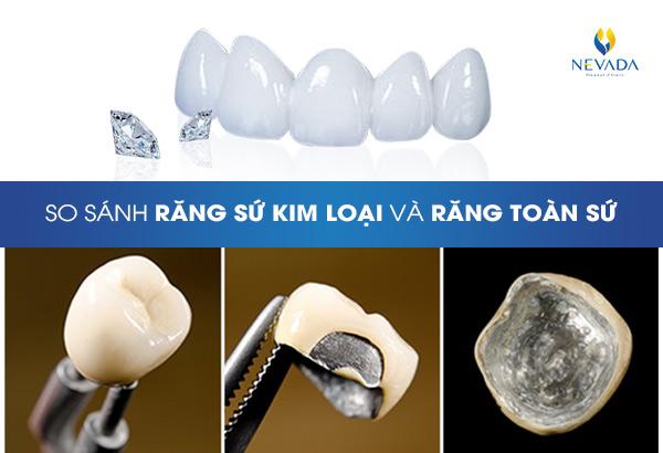 so sánh răng sứ kim loại và răng toàn sứ, răng sứ kim loại và răng toàn sứ, răng toàn sứ và răng sứ kim loại