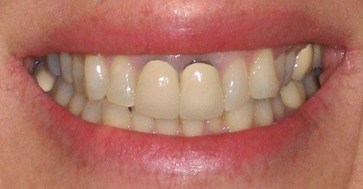 răng sứ có bị xuống màu không, răng sứ có xuống màu không, Răng toàn sứ có bị xuống màu không