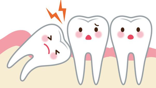 đau răng khôn không ngủ được, đau răng khôn không ngủ được phải làm sao