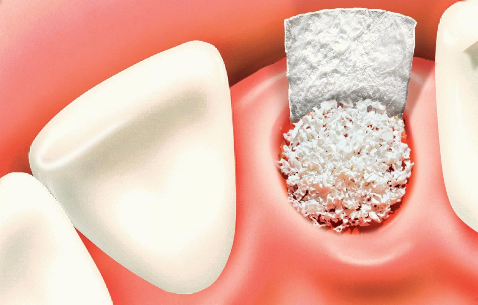 Nhổ răng khôn sau 1 tuần vẫn đau