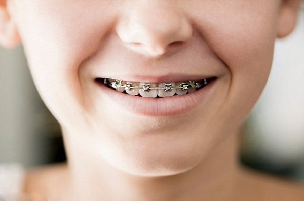 Niềng răng cho trẻ 10 tuổi, Giá niềng răng cho trẻ 10 tuổi, Giá niềng răng cho trẻ 10 tuổi
