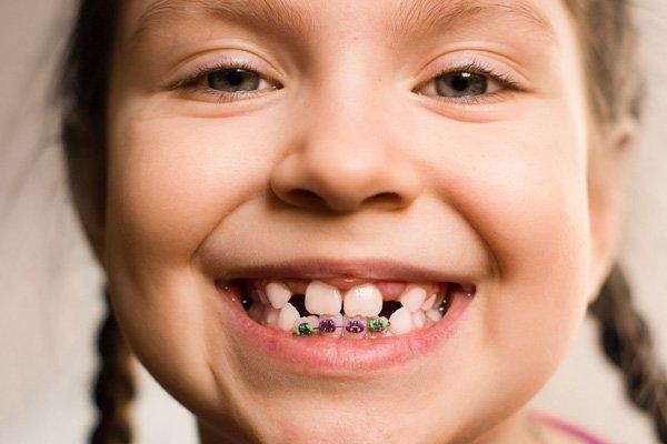 Niềng răng cho trẻ 11