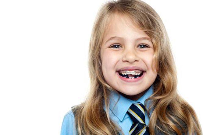 giá niềng răng cho trẻ em, chi phí niềng răng cho trẻ em, niềng răng cho trẻ em giá bao nhiêu, niềng răng cho trẻ em bao nhiêu tiền, giá niềng răng trẻ em, niềng răng nhựa cho trẻ em, niềng răng trẻ em bao nhiêu tiền, niềng răng trẻ em giá rẻ
