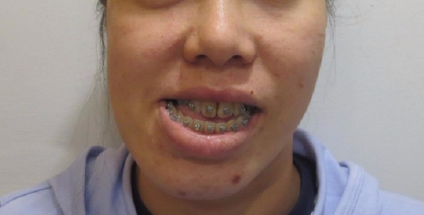 niềng răng ảnh hưởng thần kinh, niềng răng có ảnh hưởng thần kinh, niềng răng có ảnh hưởng đến thần kinh, niềng răng có ảnh hưởng đến thần kinh không