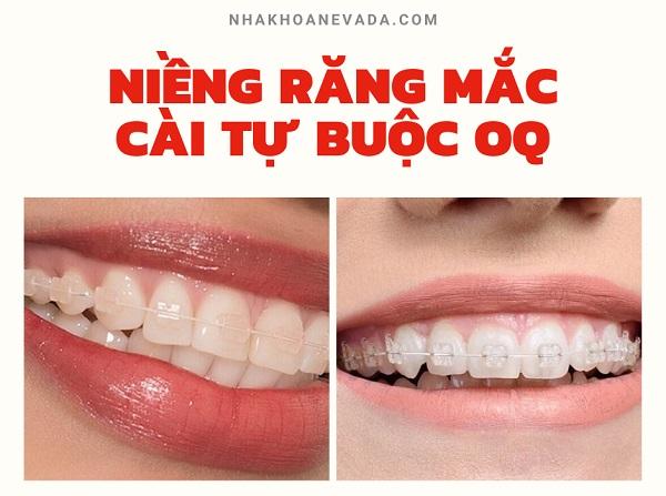niềng răng mắc cài buộc chun oq