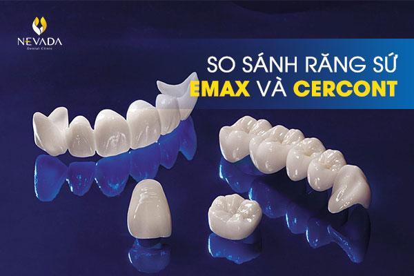 so sánh răng sứ Emax và Cercon