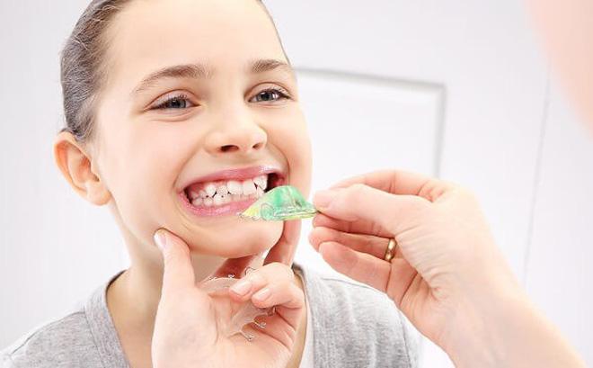Niềng răng cho trẻ 12 tuổi
