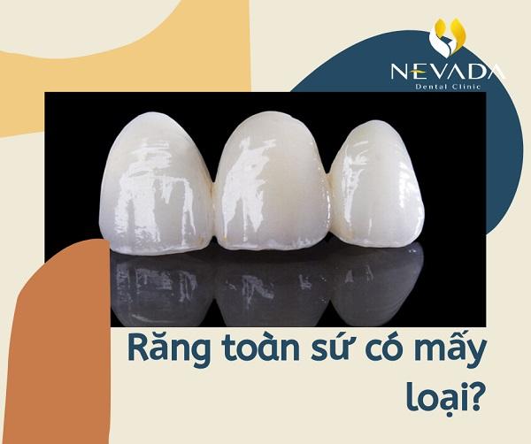 răng sứ có mấy loại, răng sứ có bao nhiêu loại, răng toàn sứ có mấy loại, bọc răng sứ có mấy loại, trồng răng sứ có mấy loại