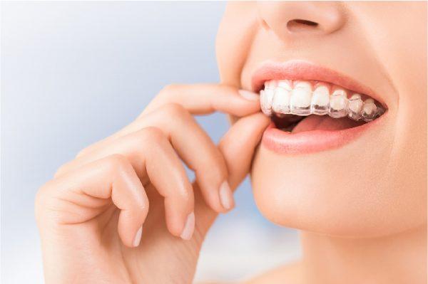 sau khi niềng răng phải đeo hàm duy trì bao lâu, sau khi niềng răng đeo hàm duy trì, sau niềng răng phải đeo hàm duy trì bao lâu, sau khi niềng răng đeo hàm duy trì bao lâu, sau khi niềng răng đeo hàm duy trì, niềng răng xong phải đeo hàm duy trì bao lâu