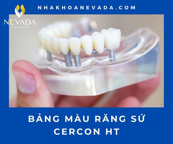 Bảng màu răng sứ Cercon HT có mấy màu