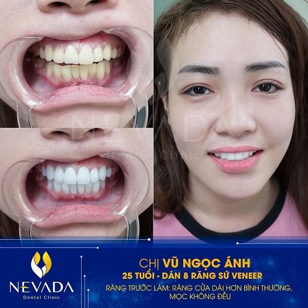So sánh dán sứ Veneer và bọc răng sứ thẩm mỹ