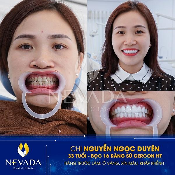 So sánh răng sứ Cercon ht và Zirconia, răng sứ Cercon ht và Zirconia