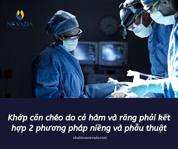 cách khắc phục khớp cắn chéo, khớp cắn chéo là gì, khớp cắn chéo, chỉnh khớp cắn chéo, lệch khớp cắn chéo, nâng khớp cắn chéo, niềng răng khớp cắn chéo, điều trị khớp cắn chéo, phẫu thuật khớp cắn chéo