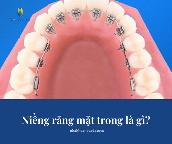 địa chỉ niềng răng mặt trong trả góp, niềng răng mặt trong trả góp Hà Nội, niềng răng mặt trong trả góp Hồ Chí Minh