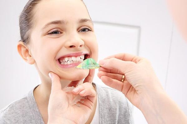 Điều trị khớp cắn ngược ở trẻ em, khớp cắn ngược ở trẻ nhỏ, khớp cắn ngược ở trẻ em, khớp cắn ngược ở trẻ, trẻ em bị khớp cắn ngược, điều trị khớp cắn ngược ở trẻ em
