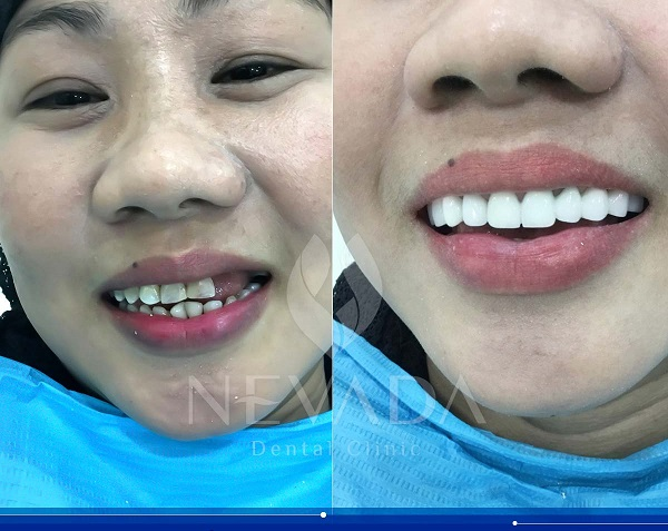 Giá răng sứ Veneer DDBIO, răng sứ Veneer DDBIO, Veneer DDBIO, Veneer DDBIO là gì