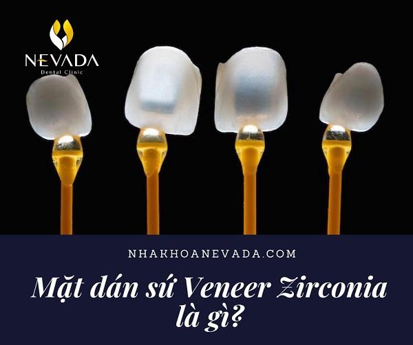 mặt dán sứ veneer zirconia là gì, dán sứ veneer zirconia, veneer zirconia là gì, veneer zirconia giá bao nhiêu, veneer zirconia có tốt không