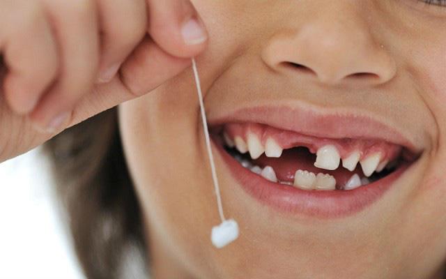 nằm mơ thấy răng là điềm gì, mơ thấy răng, nằm mơ thấy răng, nằm mơ thấy răng rụng, nằm mơ thấy răng sâu, nằm mơ thấy răng gãy, nằm mơ thấy răng của mình