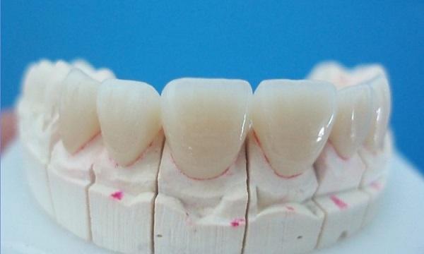 răng sứ zolid giá bao nhiêu, giá răng sứ zolid, răng sứ zolid là gì, răng sứ zolid có tốt không, răng sứ zolid, răng toàn sứ zolid
