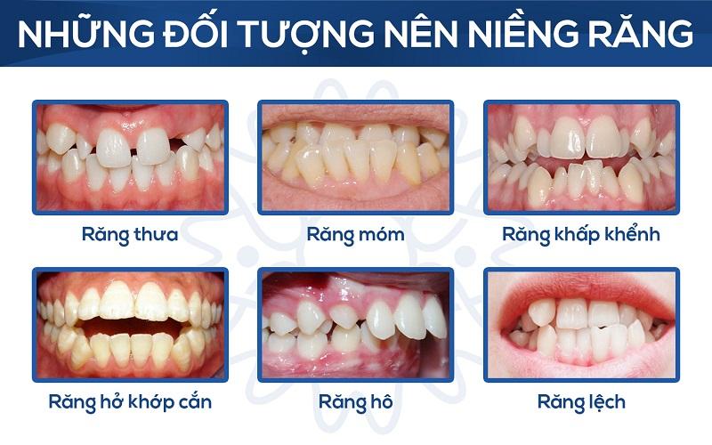 review niềng răng mặt trong có tốt không, niềng răng mặt trong có tốt không, niềng răng mặt trong có hiệu quả, niềng răng mặt trong review