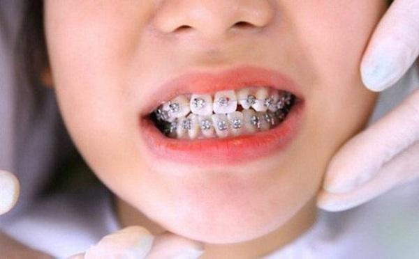 bảng giá niềng răng ở hà nội, giá niềng răng tại hà nội, giá niềng răng ở hà nội, chi phí niềng răng tại hà nội, bảng giá niềng răng ở hà nội, niềng răng ở hà nội giá bao nhiêu, niềng răng giá rẻ tại hà nội
