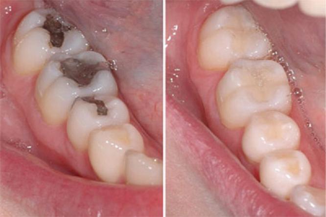 hàn trám răng có đau không, trám răng có đau không, trám răng sâu có đau không, trám răng mẻ có đau không, trám răng cửa có đau không, trám răng thưa có đau không, trám răng sữa có đau không, trám răng có bị đau không, trám răng xong có đau không, trám răng hàm có đau không, trám răng có đau ko, trám răng có đau k, trám răng sâu nhẹ có đau không, hàn trám răng sâu có đau không, trám răng cửa bị sâu có đau không, trám răng cửa bị mẻ có đau không, trám răng cửa thưa có đau không, trám răng thẩm mỹ có đau không