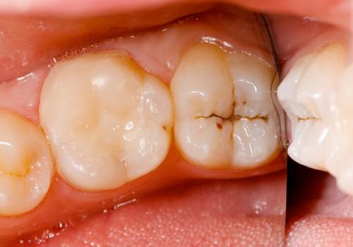 nguyên nhân trẻ bị mủn răng, hiện tượng mủn răng ở trẻ, trẻ bị mủn răng sữa, trẻ bị mủn răng, bé bị mủn răng sữa, bé bị mủn răng, trẻ con bị mủn răng, trẻ em bị mủn răng, trẻ bị mủn chân răng, nguyên nhân trẻ bị mủn răng, trẻ 1 tuổi bị mủn răng, trẻ 2 tuổi bị mủn răng, tại sao trẻ bị mủn răng, răng trẻ em bị mủn, Răng bị mủn vỡ, Răng của bé bị mủn, mủn răng sữa, mủn răng, mủn răng là gì, bệnh mủn răng