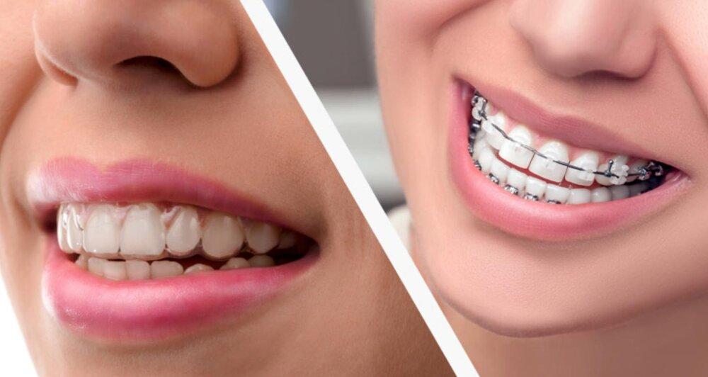 niềng răng giá rẻ nhất là bao nhiêu tiền, niềng răng giá rẻ nhất là bao nhiêu, niềng răng giá rẻ, niềng răng giá rẻ hà nội, niềng răng giá rẻ nhất, niềng răng giá rẻ tphcm, niềng răng giá rẻ có tốt không, niềng răng giá rẻ ở tphcm, niềng răng giá rẻ uy tín, niềng răng giá rẻ, niềng răng giá rẻ ở hà nội, nha khoa niềng răng giá rẻ, chỉnh nha niềng răng giá rẻ tphcm, giá niềng răng rẻ nhất, chi phí niềng răng rẻ nhất, bảng giá niềng răng rẻ nhất