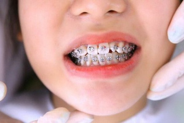 thế nào là khớp cắn lệch, khớp cắn lệch, chỉnh khớp cắn lệch, niềng răng khớp cắn lệch, thế nào là khớp cắn lệch, cách chữa khớp cắn lệch, răng khớp cắn lệch, bệnh khớp cắn lệch, dấu hiệu khớp cắn lệch, bọc răng sứ bị lệch khớp cắn, phẫu thuật lệch khớp cắn bao nhiêu tiền, khớp cắn lệch có sao không, khớp cắn bị lệch, lệch khớp cắn là gì