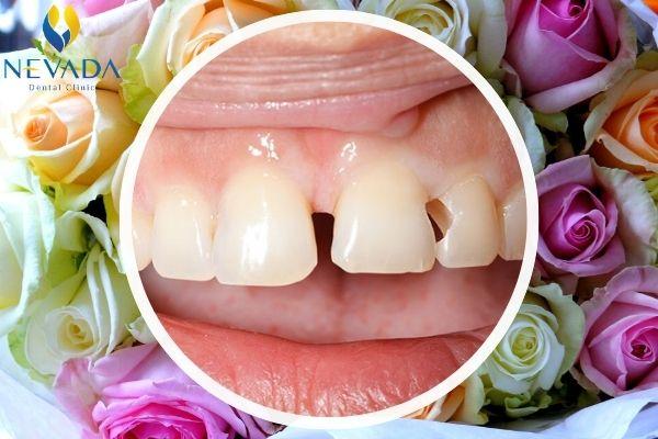 bọc răng bạc giá bao nhiêu, bọc răng bạc, làm răng bọc bạc, làm răng bạc, bọc răng bằng bạc, mạ răng bạc, Giá bọc răng bạc