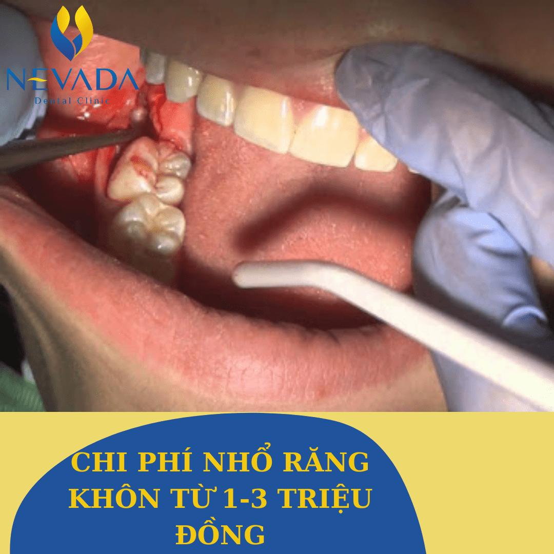 có nên nhổ răng khôn mọc ngầm không, có nên nhổ răng khôn mọc ngầm, nhổ răng khôn mọc ngầm, nhổ răng khôn mọc ngầm có đau không, nhổ răng khôn mọc ngầm giá bao nhiêu, cách nhổ răng khôn mọc ngầm, video nhổ răng khôn mọc ngầm, quy trình nhổ răng khôn mọc ngầm, chi phí nhổ răng khôn mọc ngầm, nhổ răng khôn hàm dưới mọc ngầm, kinh nghiệm nhổ răng khôn mọc ngầm, nhổ răng số 8 mọc ngầm