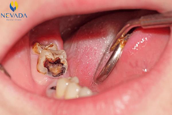 điều trị răng sâu bị thủng sàn, răng sâu bị thủng sàn, răng thủng sàn, sâu răng thủng sàn, răng sâu bị thủng sàn, điều trị răng thủng sàn, xử lý răng thủng sàn, thủng sàn răng là gì, thủng sàn răng sữa, răng bị thủng sàn, hình ảnh răng bị thủng sàn, điều trị răng bị thủng sàn, dấu hiệu thủng sàn răng