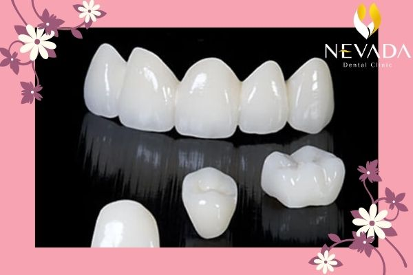 làm răng sứ đẹp tự nhiên, răng sứ tự nhiên, màu răng sứ tự nhiên nhất, răng sứ đẹp tự nhiên nhất, màu răng sứ tự nhiên, bọc răng sứ tự nhiên, răng sứ đẹp tự nhiên