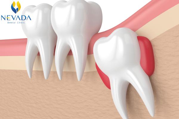 nhổ răng mọc ngầm bao nhiêu tiền, chi phí nhổ răng mọc ngầm, nhổ răng nanh mọc ngầm, nhổ răng thừa mọc ngầm, nhổ răng cửa mọc ngầm, nhổ răng khôn mọc ngầm, nhổ răng mọc ngầm có đau không, răng ngầm là gì, răng ngầm trong xương, răng ngầm ở đâu, răng mọc ngầm có nguy hiểm không, nhổ răng ngầm, mổ răng ngầm, răng mọc ngầm hàm dưới, nang răng ngầm, nhổ răng ngầm hết bao nhiêu tiền