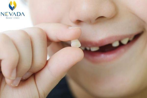 răng hàm của trẻ nhỏ có thay không, răng hàm trẻ nhỏ có thay không, ăng hàm sữa có thay ko, răng hàm có thay như răng sữa không, răng hàm của bé có thay không, răng hàm của bé có thay k, răng cối sữa có thay không
