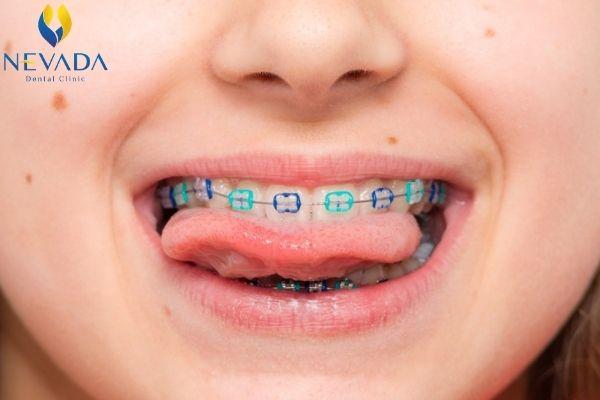 răng mọc lẫy phải làm sao, răng mọc lẫy hàm trên, răng mọc lẫy hàm dưới, răng mọc lẫy vào trong, răng mọc lẫy là gì, răng mọc lẫy, răng mọc lẫy xấu, nhổ răng mọc lẫy, răng trẻ mọc lẫy, hàm răng mọc lẫy