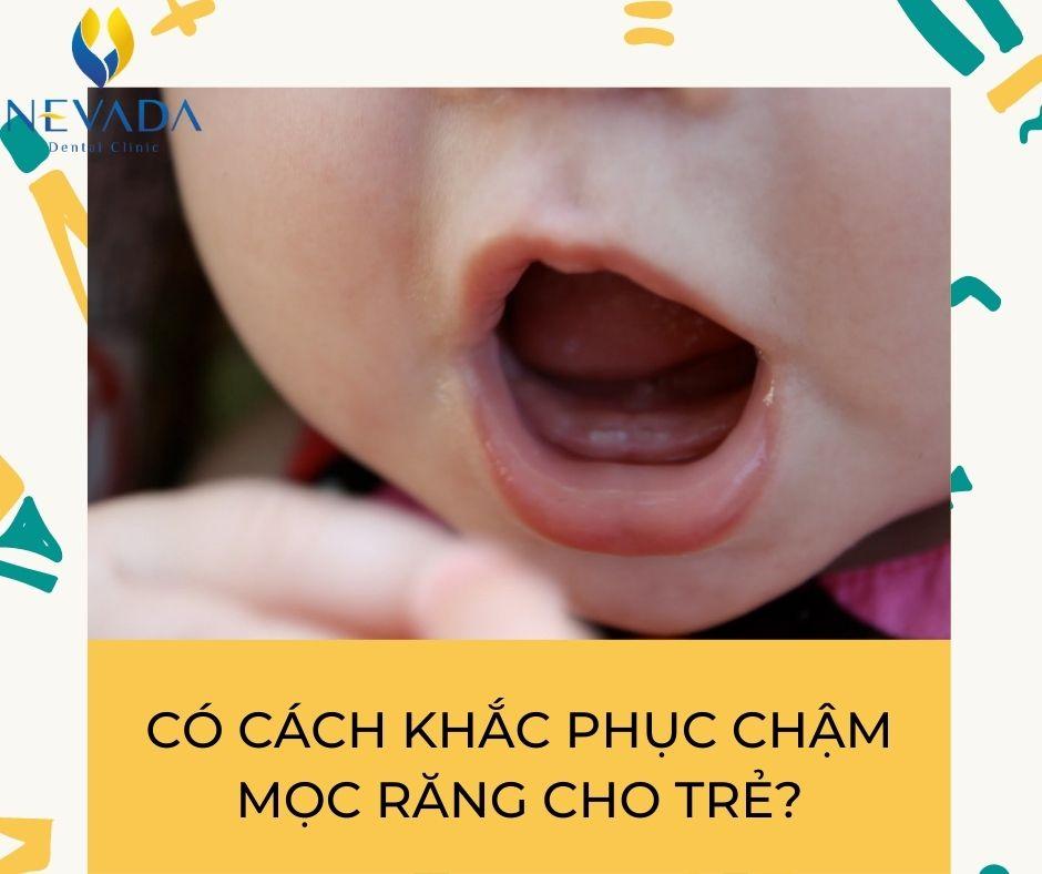 trẻ chậm mọc răng phải làm sao, trẻ chậm mọc răng, chậm mọc răng vĩnh viễn, trẻ chậm mọc răng vĩnh viễn, răng cửa vĩnh viễn mọc chậm, Bé chậm mọc răng nên ăn gì, Cách khắc phục trẻ chậm mọc răng, trẻ chậm mọc răng nên uống thuốc gì, trẻ chậm mọc răng cần bổ sung gì, trẻ chậm mọc răng khám ở đâu, trẻ chậm mọc răng có ảnh hưởng gì không, trẻ chậm mọc răng có nên bổ sung canxi