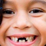 Trẻ mọc thiếu răng sữa phải làm sao, có ảnh hưởng gì không?