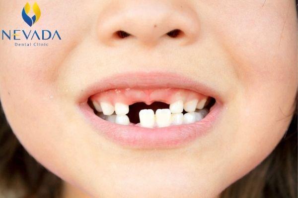 trẻ mọc thiếu răng sữa, trẻ mọc thiếu răng, trẻ bị thiếu răng, bé bị thiếu mầm răng, trẻ mọc thiếu răng nanh, bé mọc thiếu răng sữa, trẻ em mọc thiếu răng sữa