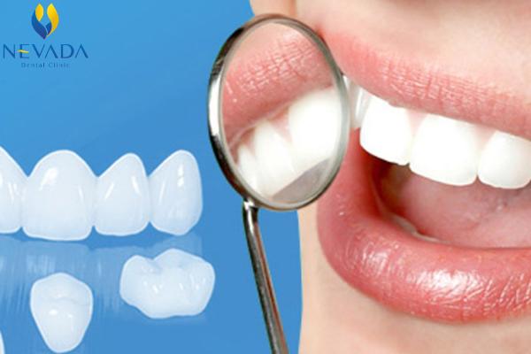 Bọc răng sứ cercon có tốt không, răng sứ cercon có tốt không, răng sứ cercon ht, răng sứ cercon giá bao nhiêu, răng sứ cercon có mấy loại, thẻ bảo hành răng sứ cercon, so sánh răng sứ cercon và ceramill, răng sứ cercon là gì, răng sứ cercon zirconia, răng sứ cercon và zirconia, bọc răng sứ cercon có tốt không, bọc răng sứ cercon, các loại răng sứ cercon, răng sứ cercon của đức, răng sứ cercon sử dụng được bao lâu, răng sứ cercon và emax, có nên làm răng sứ cercon, độ bền của răng sứ cercon, làm răng sứ cercon có tốt không, Ưu và nhược điểm của răng sứ cercon, ưu điểm của răng sứ ceron, nhược điểm của răng sứ cercon, ưu điềm răng sứ cercon, nhược điểm răng sứ cercon, ưu nhược điểm răng sứ cercon