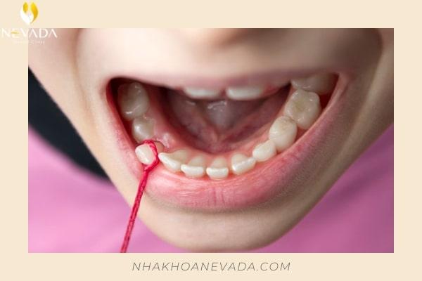nhổ răng còn sót chân răng có sao không, nhổ răng sữa còn sót chân răng, nhổ răng còn sót lại chân răng, nhổ răng khôn còn sót chân răng có sao không, nhổ răng số 8 còn sót chân răng, nhổ răng số 7 còn sót chân răng, nhổ răng khôn sót chân, nhổ răng khôn còn sót chân, nhổ răng khôn hàm dưới còn sót chân răng, nhổ răng sót chân, nhổ răng bị sót chân, nhổ răng sữa sót chân răng, nhổ răng số 8 sót chân răng, nhổ răng sữa bị sót chân răng