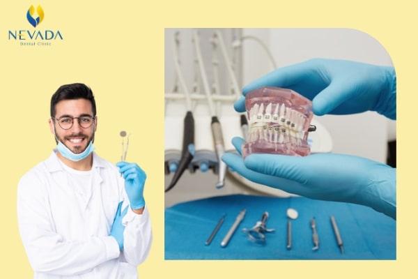 niềng răng công nghệ meaw là gì, niềng răng công nghệ meaw, Niềng răng kỹ thuật meaw