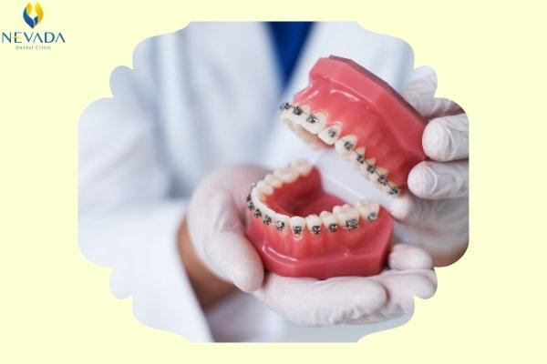 niềng răng sắt bao nhiêu tiền, niềng răng sắt, niềng răng sắt giá bao nhiêu, niềng răng sắt, niềng răng bằng sắt, giá niềng răng sắt, chi phí niềng răng sắt, niềng răng mắc cài sắt bao nhiêu tiền