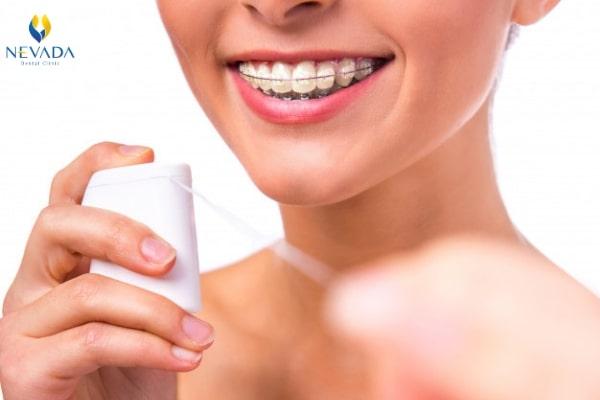 bị nhiệt miệng khi niềng răng, nhiệt miệng khi niềng răng, niềng răng bị nhiệt miệng, niềng răng bị nhiệt, niềng răng bị loét miệng, nhiệt miệng khi niềng răng