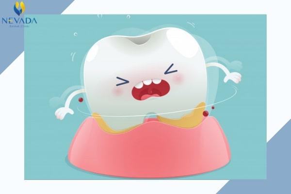 Cách làm răng sâu nhanh rụng, Cách làm răng sâu tự rụng, Cách làm răng sâu lung lay, Răng sâu nhanh rụng