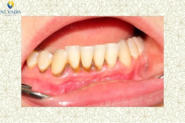 cao răng có mấy cấp độ, cao răng cấp độ 1, cao răng cấp độ 2, cao răng cấp độ 3, cao răng cấp độ 4, cao răng độ 2, cao răng độ 1