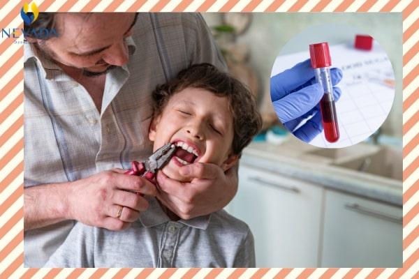 nhổ răng có cần xét nghiệm máu không, nhổ răng có cần xét nghiệm máu, xét nghiệm máu nhổ răng có cần nhịn ăn không, xét nghiệm máu nhổ răng có cần nhịn ăn, nhổ răng khôn có cần xét nghiệm máu không, xét nghiệm máu để nhổ răng