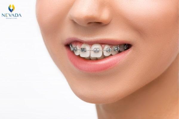 sau sinh bao lâu có thể niềng răng, Mới sinh xong có niềng răng được không, Sau sinh bao lâu thì niềng răng được, Niềng răng sau sinh